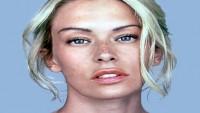 Cilt lekelerinden kurtulup pürüzsüz bir cilde kavuşmak mümkün